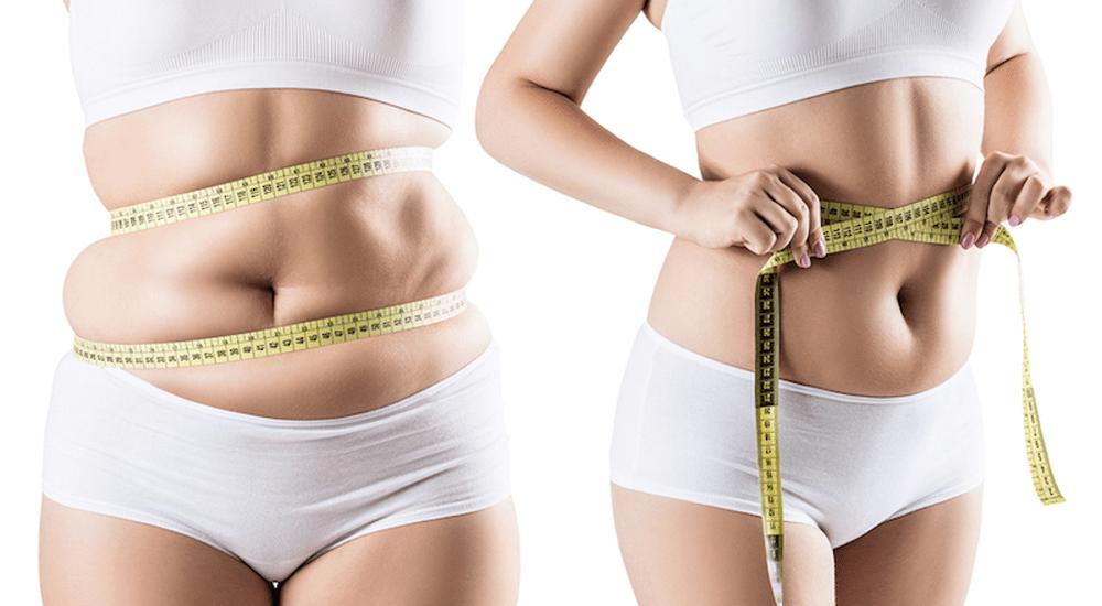 Liposuction - Evren Tevfik İsci, MD | İstanbul,Turkey